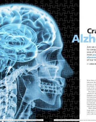 Cracking the Alzheimer's Code